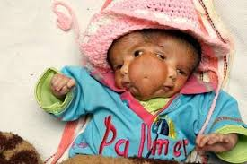 Baby Girl Born With Two Faces and Four Eyes, Worshipped as a God - amazing_fun_quaint_weird_offbeat_200907240742213021