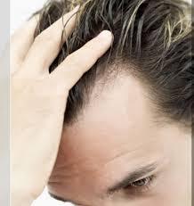 Gradual Hair loss