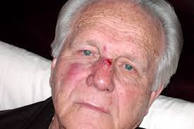 In 2004, Earl Paulk was struck in the face by Bobby Brewer, who says it was ... - slideshow_273601_PAULK0129a_03