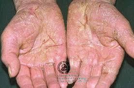 remedies for eczema, eczema treatments