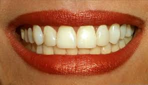 http://tbn0.google.com/images?q=tbn:EWiUwz8LlzYslM:http://www.phimatrix.com/images/i-teeth.jpg