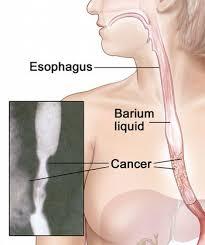 سرطان المرئ