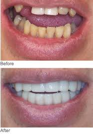 before and after at home tooth whitening