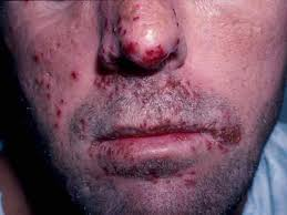 herpes cross-contamination prevention