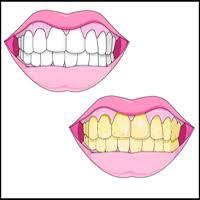 إصفرار الأسنان وعلاجه وأسبابه