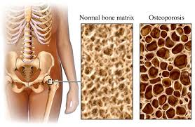 Calcium treatment for osteoporosis
