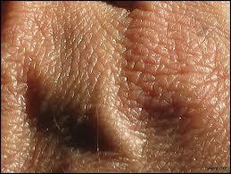 http://tbn0.google.com/images?q=tbn:sLhMAvVbvdm1OM:www.nutritionfrance.com/complements/images/photos/detail%2520peau_JaHoVil.jpg
