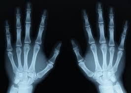 Radiografii cu raze X obtinute desfacând benzi adezive?