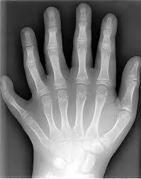 http://tbn0.google.com/images?q=tbn:ur8ep9bgIZ1SZM:http://www.stevequayle.com/GG.Images/6-fingers.jpg