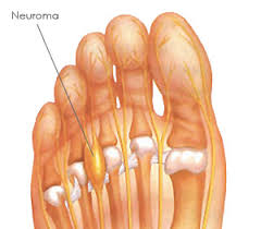 location of morton's neuroma