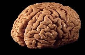 Sostituzione del cervello